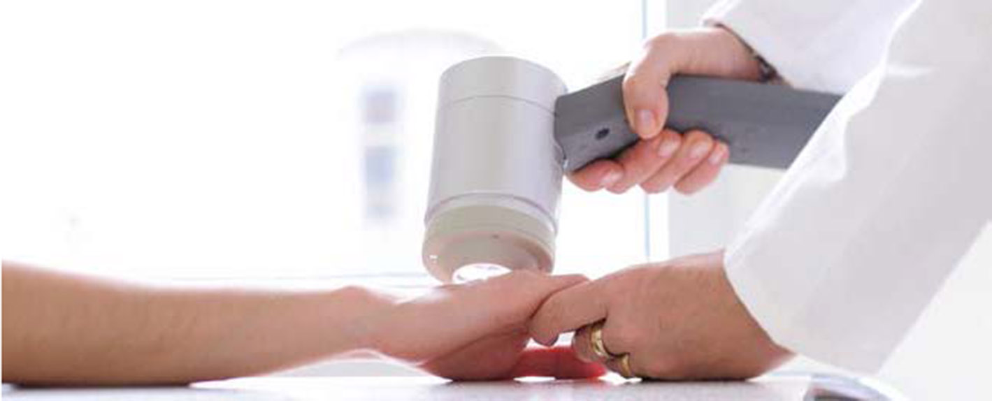 Muttermal und Aknebehandlung, Hautkrebsvorsorge - SkinConcept München